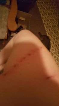 Pic 3/3 of sisters cat attack. (WARNING! LANGUAGE) by Darkarcangel5