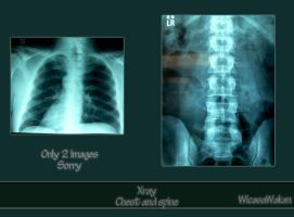 Xray chest spine set by Wicasa-stock