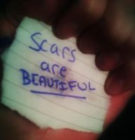 Scars Are Beautiful by LittleDreamer152