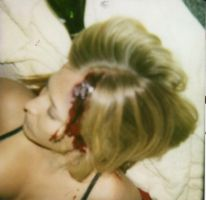 'Annie's' Head wound by bathory-babe