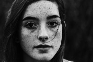 Freckles by By-who-photography