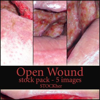 Abdominal Wound Stock Pack 5 by STOCKher