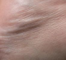 skin_texture_2 by pebe1234