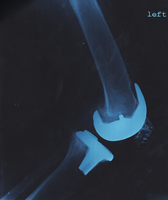 Post OP Lateral Knee X-Ray by AGP12