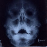 X Ray Self Portrait by headpie