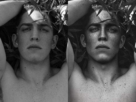 FRECKLES - Before and Affter by BaltasarVischi