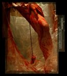 Abortion By Coathanger No.1 by Mizu1