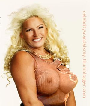 Beth Chapman X-Ray by CelebrityX-Ray